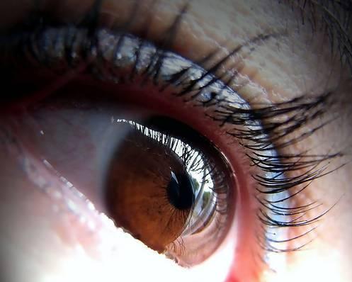 ojos hinchados por llanto