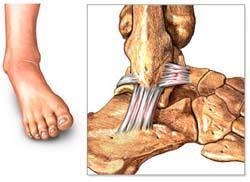 Distension ligamentos tobillo tiempo recuperacion