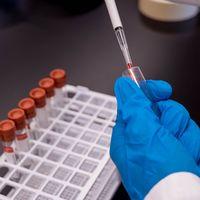 Estos tests nos van a permitir ver la pandemia en cuatro dimensiones: las primeras pruebas serológicas empiezan a salir del laboratorio