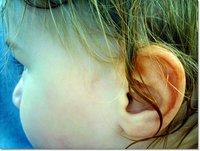 Una otitis mal curada puede dar lugar a problemas de lenguaje
