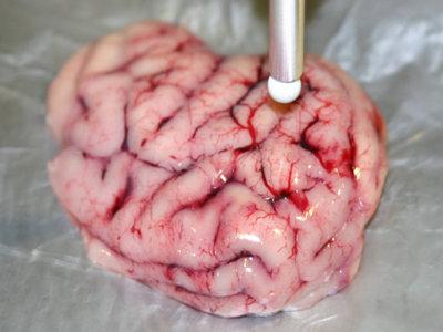 """Con este bisturí """"inteligente"""" se podría diferenciar el tejido cerebral sano del canceroso"""