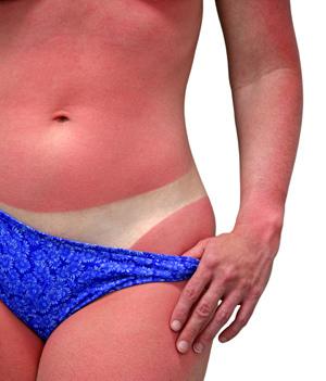 Qué hacer si nos quemamos tomando el sol