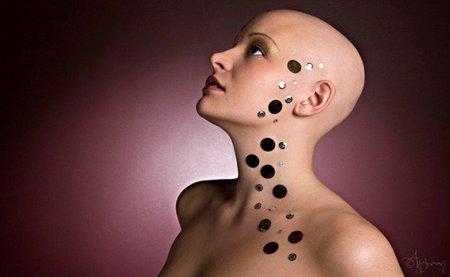 Alopecia femenina, ¿por qué?