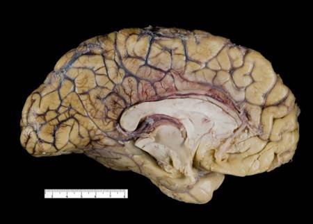 Fotografia Medica Seccion De Cerebro Humano