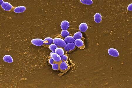 Las esporas de hongo y otros microorganismos son candidatas a sobrevivir en la superficie de Marte, según la NASA