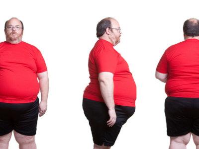 Estudio revela 6 tipos diferentes de personas con obesidad