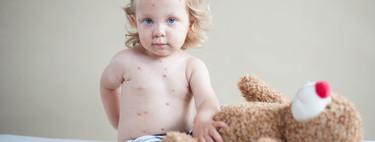 Los casos de sarampión en 2018 baten récords en Europa
