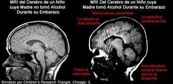 El alcohol reduce el tamaño del cerebro del bebé y puede producir la muerte fetal