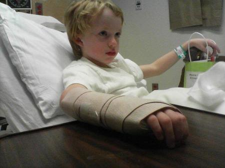 fractura-pediatría
