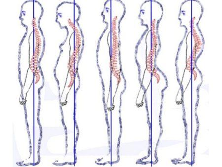 Para una buena postura: trabaja equilibradamente espalda y abdomen