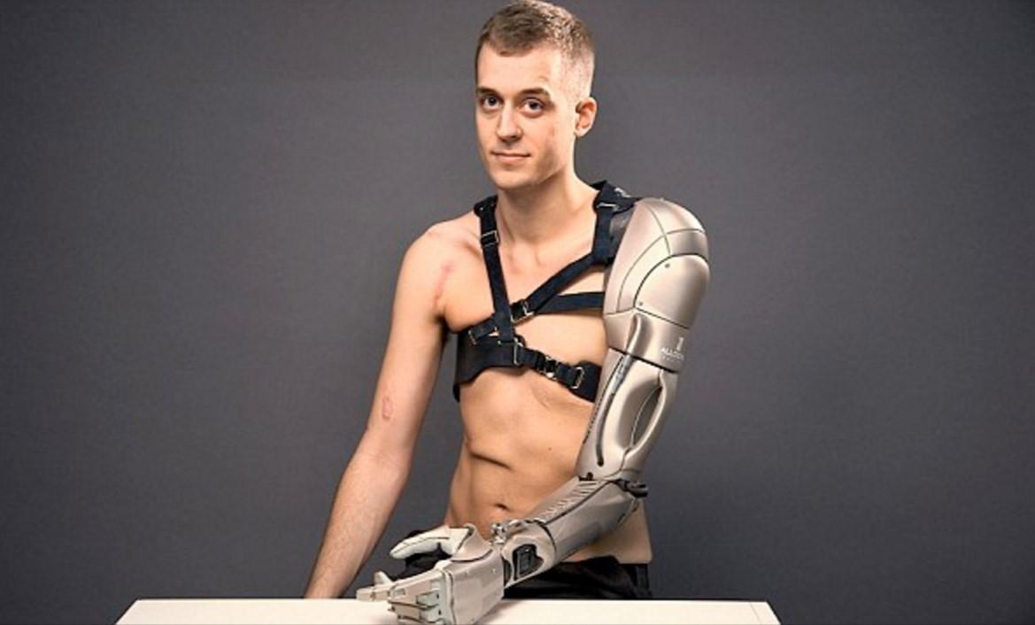 El brazo biónico del futuro ya existe y tiene hasta puerto USB y un mini-dron integrado