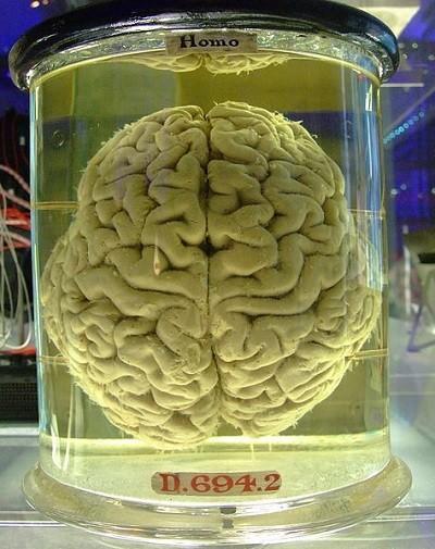 Cuando a nuestro cerebro le falla algo
