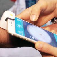 La lucha contra el melanoma puede empezar en tu smartphone gracias a MoleScope