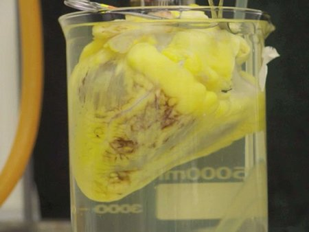 El primer laboratorio del mundo para crear órganos bioartificiales para trasplantes