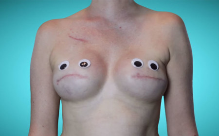 Cancer Mastectomy Photos My Breast Choice Aniela Mcguinness 8