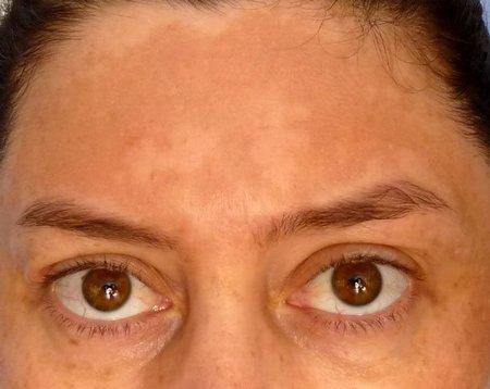 Estoy embarazada y tengo manchas oscuras en la piel: me ha salido un cloasma en el rostro
