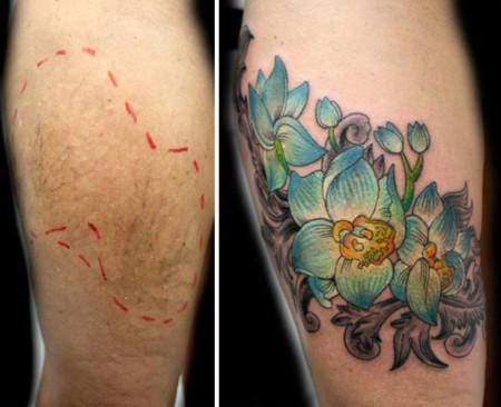 Abuse Scar