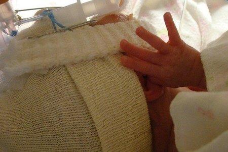 Nace un bebé de una mujer en coma