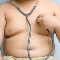 Los prebióticos podrían ser un buen recurso para el tratamiento del sobrepeso y la obesidad en niños