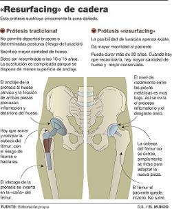 Prótesis de cadera que permite hacer deporte intenso, resurfacing de cadera