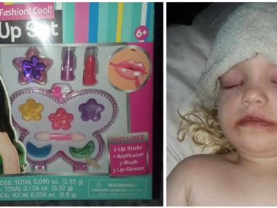 Una niña de tres años sufre una importante reacción alérgica a un maquillaje infantil: claves para prevenir incidentes