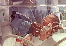 Los bebés prematuros cada vez tienen menos riesgos