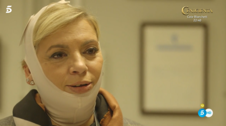 Carmen Borrego tras operarse la papada