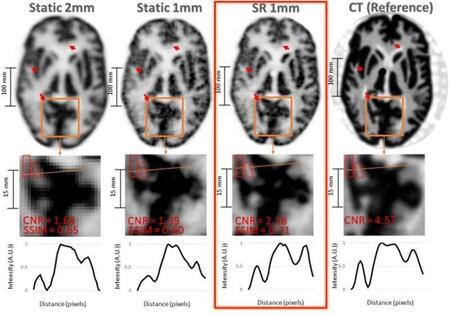 Esta nueva técnica de superresolución permite obtener imágenes cerebrales más detalladas y podria detectar el Alzheimer