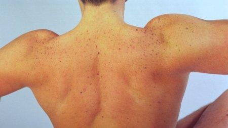 Músculos poco visibles pero que no debemos olvidar: serrato mayor