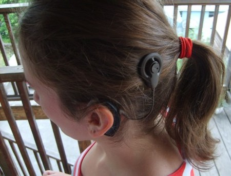 Cochlear Implant2
