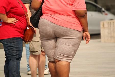 Obesidd