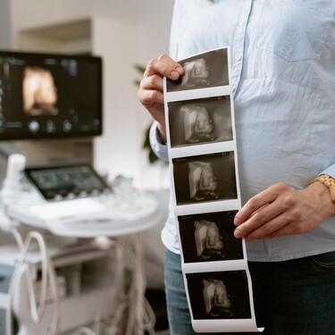 Ecografía 4D en el embarazo: qué es y cuándo es mejor hacerla