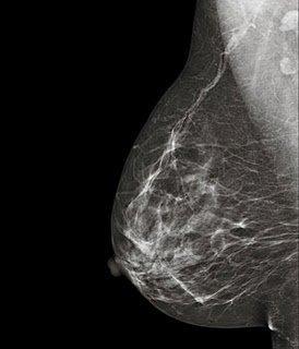 ¿Sirve de algo realizarse mamografías para saber si tienes cáncer?