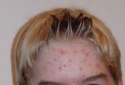 Guerra al acné: consejos y tratamientos