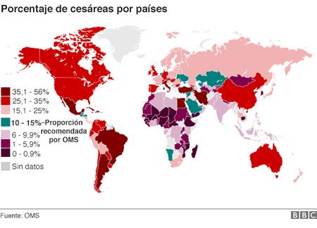 indice-de-cesareas-en-el-mundo