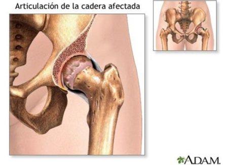 Osteomalacia: ¿qué es y cómo prevenirla?
