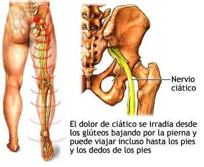 El dolor que da en la espátula izquierda sobre la espalda