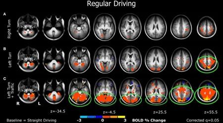 fMRI study 02 Estudio de la actividad cerebral durante la conducción