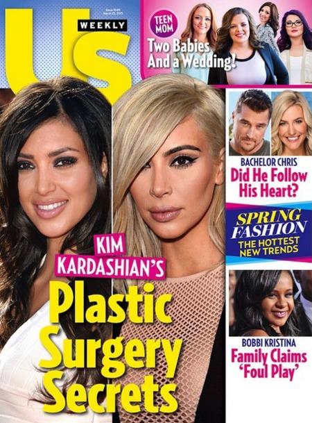 Los secretos de cirugía de Kim Kardashian