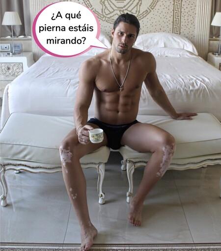¿Qué son las manchas que tiene Luca Onestini en las piernas? El concursante de 'Secret story' nos saca de dudas sobre su enfermedad en la piel