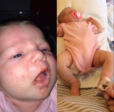 Esta es la razón por la que nadie debería besar en la boca a un bebé: su hija estuvo cerca de no contarlo