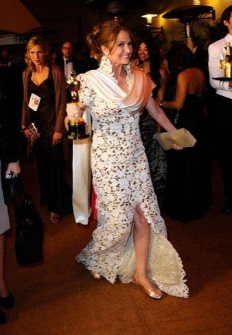 Melissa Leo zapatos Oscar 2011