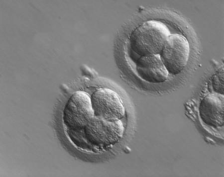 El primer bebé con ADN de tres padres