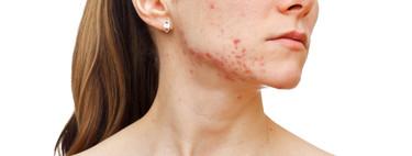 Todo lo que necesitas saber del acné: qué lo causa y cómo puedes tratarlo