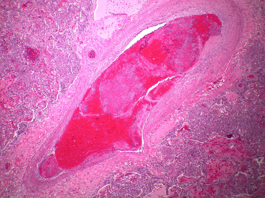 Thrombobembolus