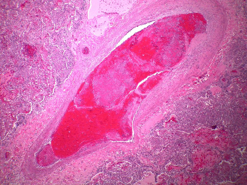 Thrombobembolus