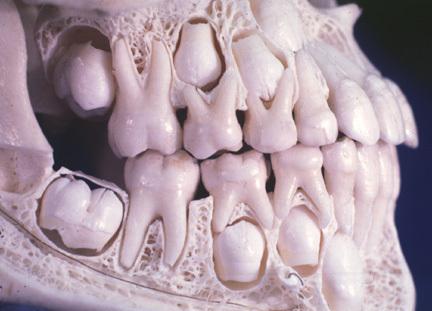 mandíbula-8-años