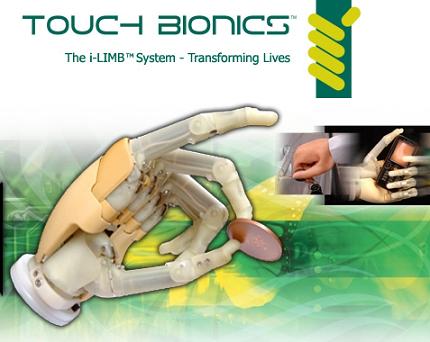 Nueva mano biónica funcional