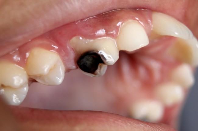 Caries Dental: uno de los problemas mas comunes al consumir bebidas azucaradas