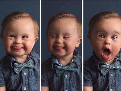 Lo rechazan para una campaña publicitaria por tener Síndrome de Down y su madre inicia una lucha en internet
